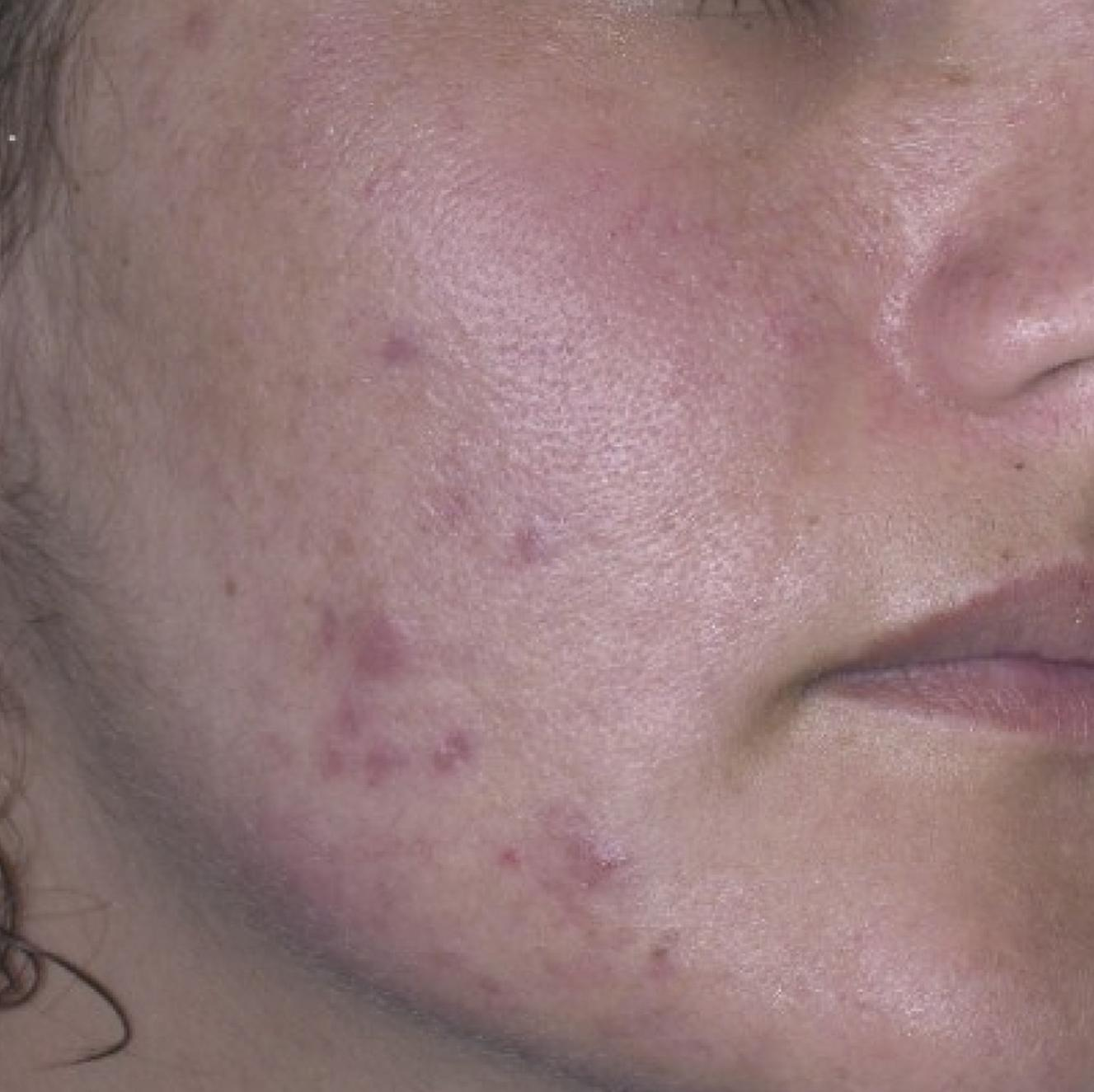 Acne beforeThermascan treatment