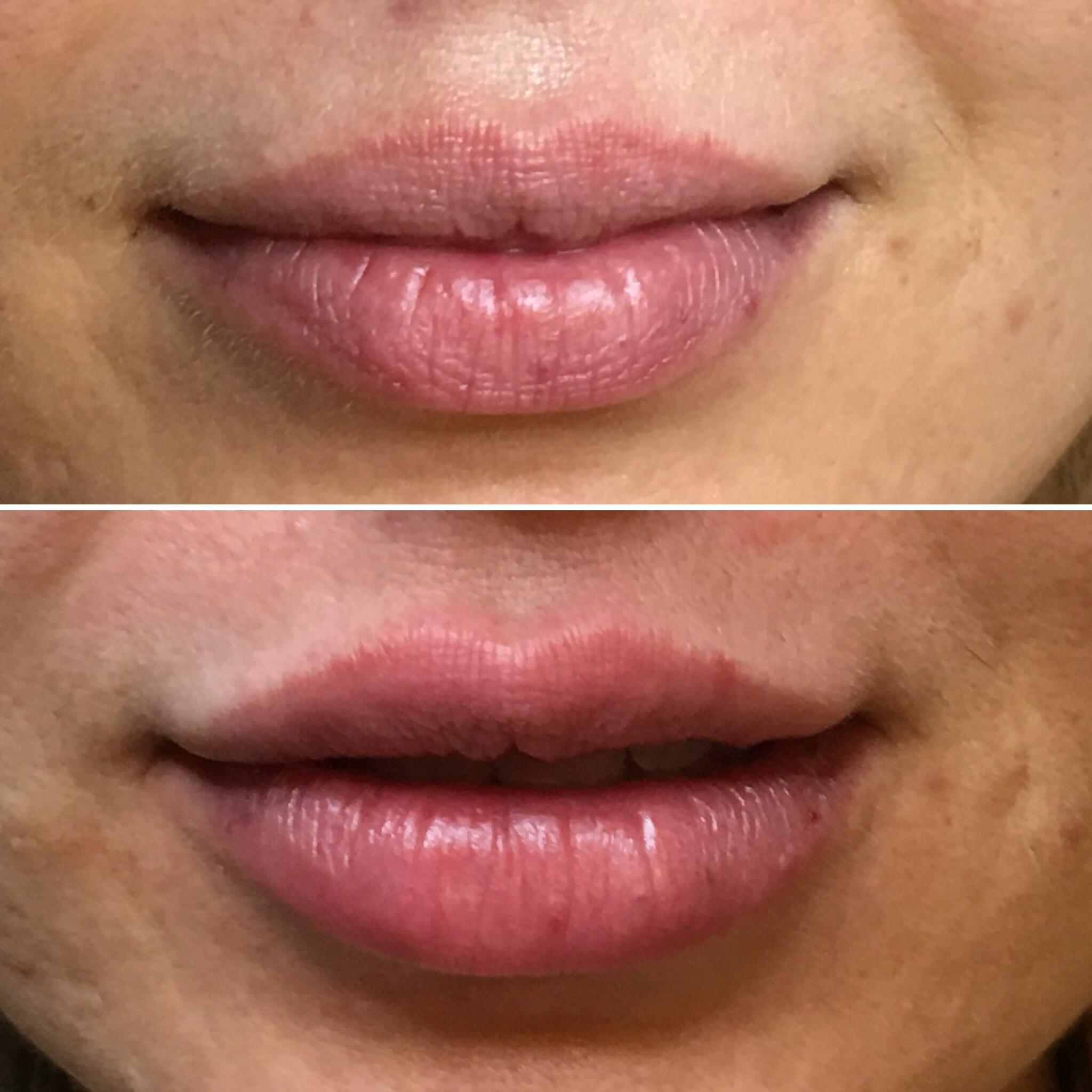 Lip Injections Vancouver | Lip Fillers in Port Coquitlam and