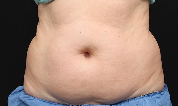 coolsculpting after adbomen permanent fat freezing and body contouring