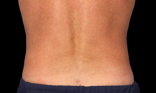coolsculpting lose fat from stomach back thighs hip bra bulge permanent fat freezing and body contouring
