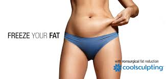 coolsculpting fat freezing