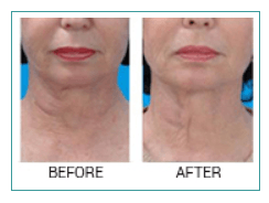 Skin tightening treatments in greater vancouver