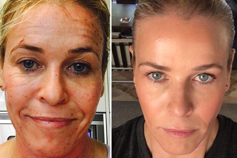 Chelsea Handler Skin Secret Profractional Laser