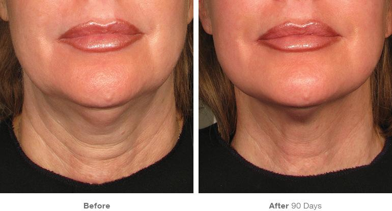ultherapy before and after mouth