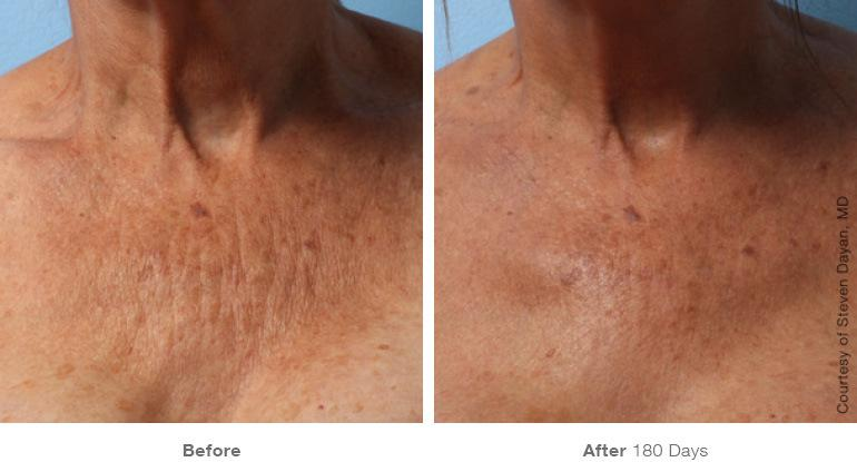 ultherapy vancouver before and after chest skin