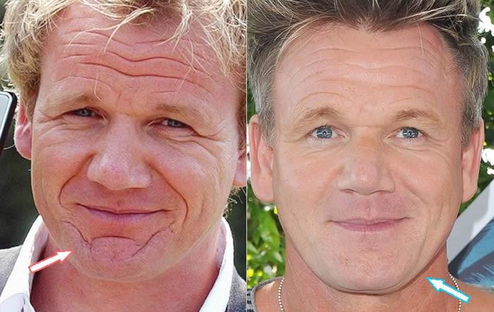 Chef Gordon Ramsay Treatments For Men