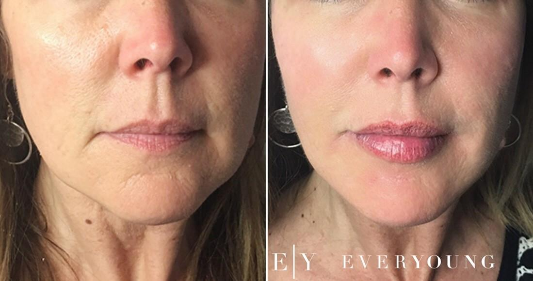 A Guide to Cosmetic Facial Sculpting: Cheek, Chin, Jawline