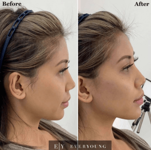 dermal fillers before and after at eym
