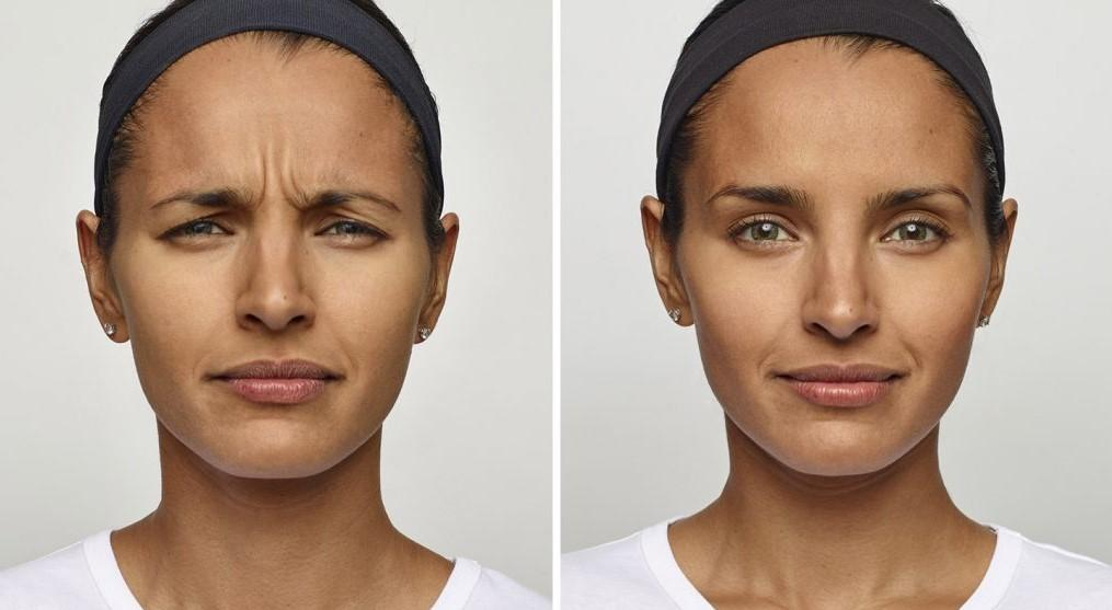 1-Dysport-before-and-after-EverYoung-Medspa-Coquitlam-Burnaby-Vancouver-BC