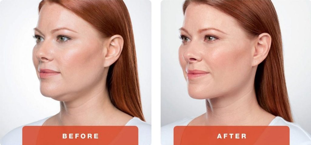 1-Kybella-Belkyra-double-chin-treatment-underchin-fat-medsap-Port-Coquitlam-Burnaby-EverYoung-Medical-Aesthetics-1