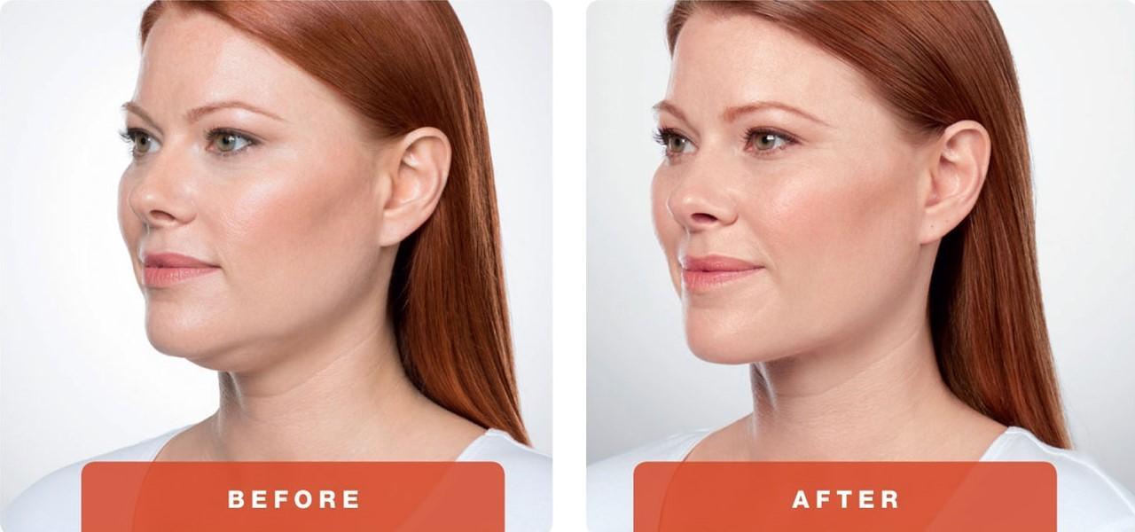 1-Kybella-Belkyra-double-chin-treatment-underchin-fat-medsap-Port-Coquitlam-Burnaby-EverYoung-Medical-Aesthetics-1