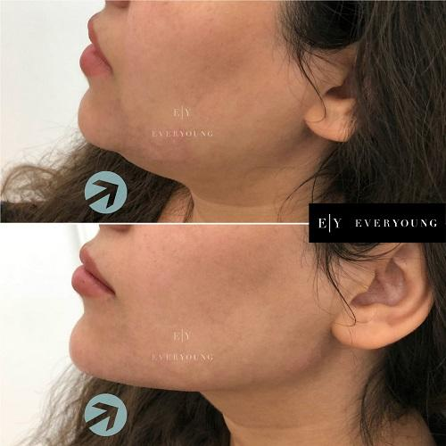 1-dermal-fillers-and-Cheek-and-chin-enhancement-Everyoung-jawline-contouring-dermal-fillers