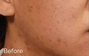 1-velashape-before-after-EverYoung-Medical-Aesthetics-cellulite-fat-loss-Vancouver-Port-Coquitlam