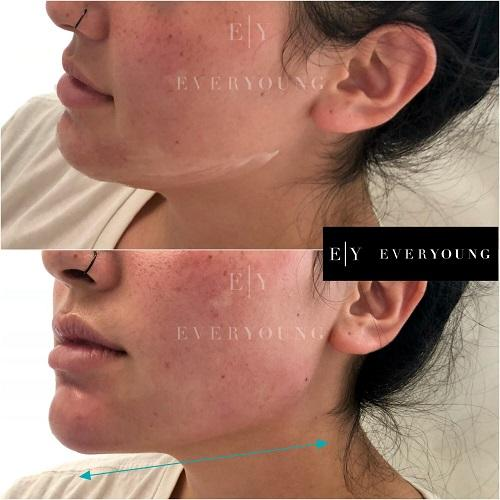 1b-Everyoung-jawline-and-chin-dermal-fillers