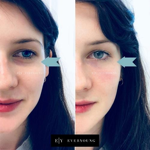 1c-Dermal-fillers-Everyoung-patient-undereye-hollows-dermal-fillers