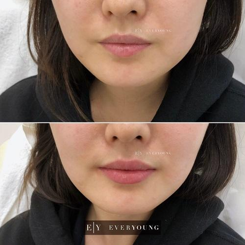1e-Everyoung-lip-augmentation-lip-injections-dermal-fillers