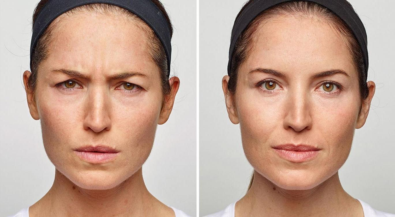 2-Dysport-before-and-after-EverYoung-Medspa-Coquitlam-Burnaby-Vancouver-BC