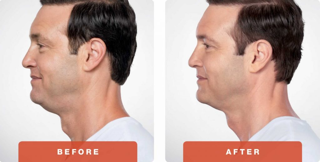 2-Kybella-Belkyra-double-chin-treatment-underchin-fat-medsap-Port-Coquitlam-Burnaby-EverYoung-Medical-Aesthetics-1