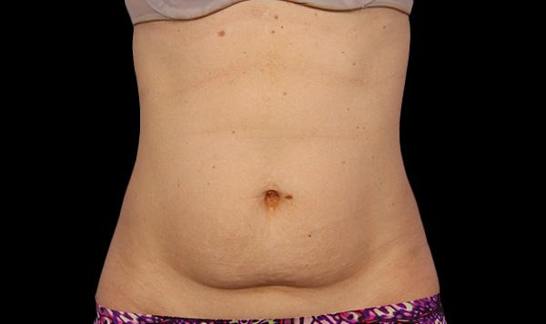 2-after-coolsculpting-port-coquitlam-fat-loss-body-contouring-coquitlam-burnaby-medspa