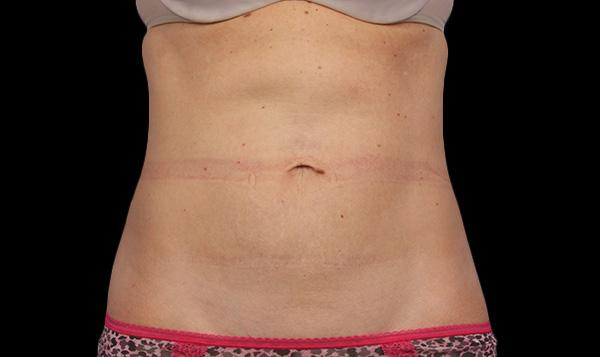 2-coolsculpting-everyoung-best-medspa-coquitlam-fat-freezing-burnaby-Port-Coquitlam-lose-fat-body-contouring