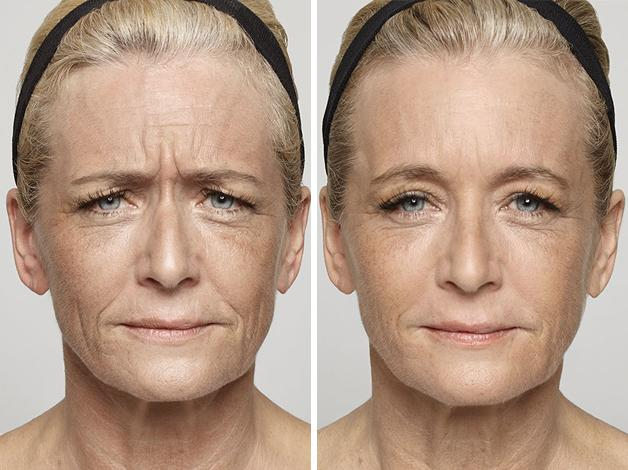 3-Dysport-before-and-after-EverYoung-Medspa-Coquitlam-Burnaby-Vancouver-BC