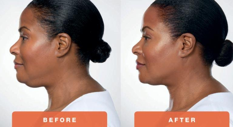 3-Kybella-Belkyra-double-chin-treatment-underchin-fat-medsap-Port-Coquitlam-Burnaby-EverYoung-Medical-Aesthetics-1