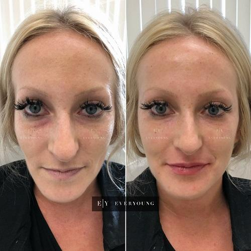 3-botox-and-filler-everyoung-full-facial-rejuvenation-dermal-filler