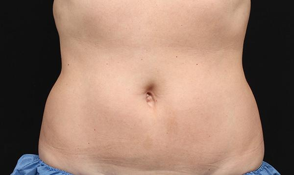 3b-after-coolsculpting-port-coquitlam-cosmetic-doctor-lose-fat-tummy-coquitlam-burnaby-medspa
