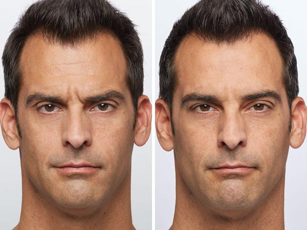 4-Dysport-before-and-after-EverYoung-Medspa-Coquitlam-Burnaby-Vancouver-BC