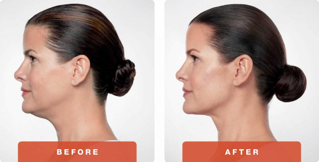 4-Kybella-Belkyra-double-chin-treatment-underchin-fat-medsap-Port-Coquitlam-Burnaby-EverYoung-Medical-Aesthetics-1