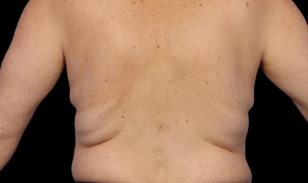 4-before-coolsculpting-lose-fat-everyoung-med-spa-coquitlam-burnaby-port-coquitlam-BC-back-fat