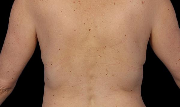 4-coolsculpting-body-contouring-fat-loss-lose-weight-port-coquitlam-medspa-coquitlam-burnaby-best-cosmetic-doctor