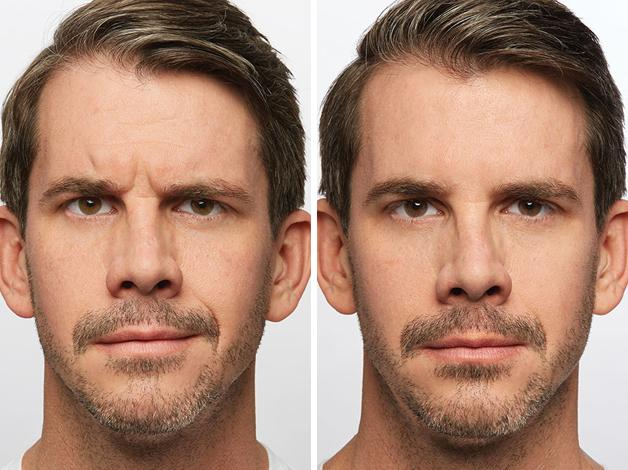 5-Dysport-before-and-after-EverYoung-Medspa-Coquitlam-Burnaby-Vancouver-BC