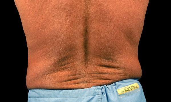 5-a-lose-back-fat-coolsculpting-medspa-coquitlam-burnaby-bc-lose-fat-lose-weight-without-surgery-everyoung-medspa