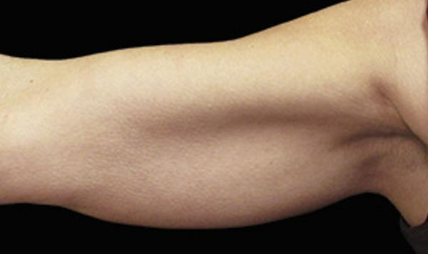 6a-coolsculpting-arm-fat-everyoung-medspa-cosmetic-clinic-port-coquitlam-burnaby-coquitlam-bd