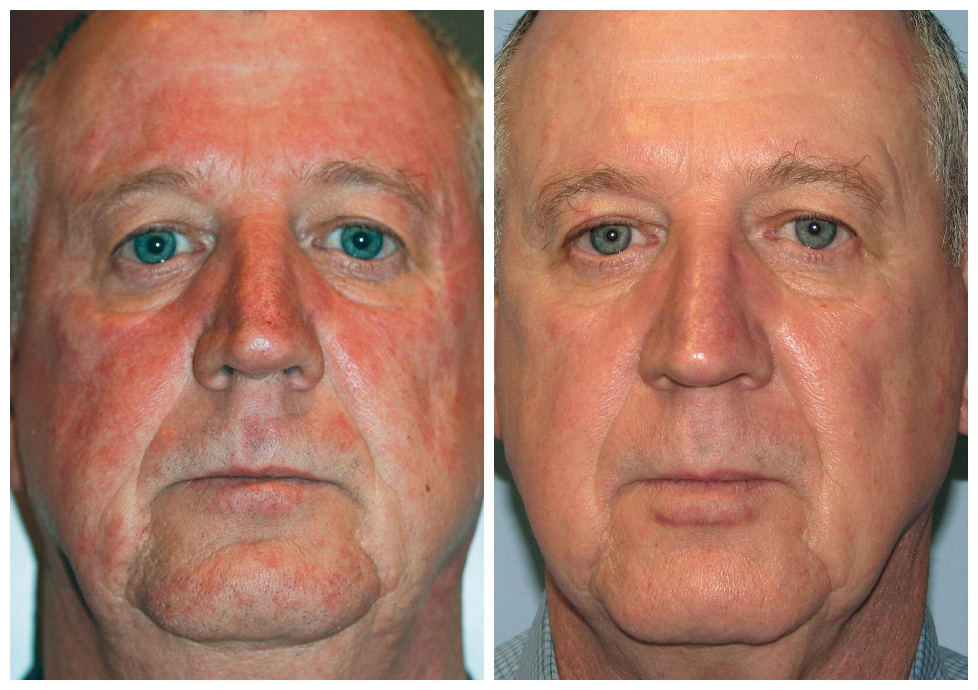 EverYoung-rosacea-redness-vein-brown-spot-treatment-vancouver-port-coquitlam-Burnaby-BC