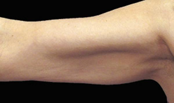 b-before-coolsculpting-for-arm-fat-body-contouring-freeze-fat-port-coquitlam-burnaby-bc