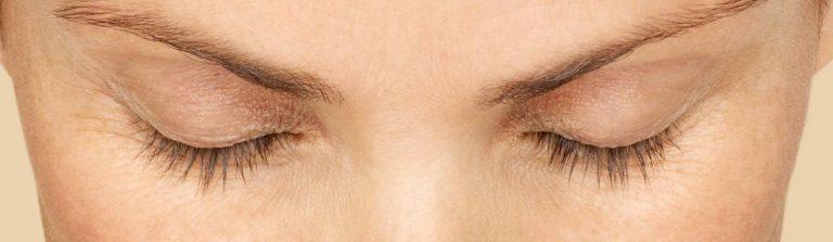 eyelashes-latisse