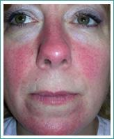 rosacea-before1