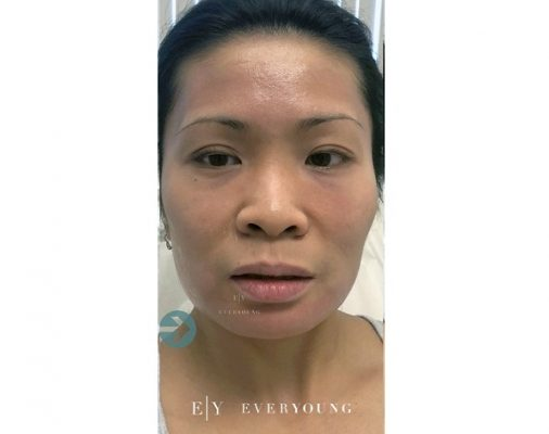 1 Everyoung-medical-aesthetics-jawline-slimming-After-vancouver-medispa (2)