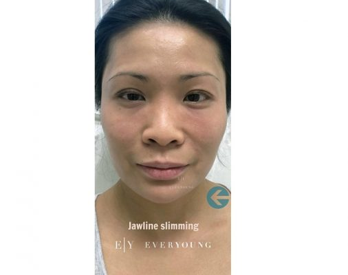 2 Everyoung-medical-aesthetics-jawline-slimming-After-vancouver-medispa