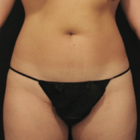 2-velashape-before-after-EverYoung-Medical-Aesthetics-cellulite-fat-loss-Vancouver-Port-Coquitlam