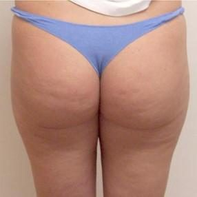 3-velashape-before-and-after-butt-velashape-before-after-EverYoung-Medical-Aesthetics-cellulite-fat-loss-Vancouver-Port-Coquitlam