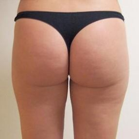 4-velashape-before-and-after-butt-velashape-before-after-EverYoung-Medical-Aesthetics-cellulite-fat-loss-Vancouver-Port-Coquitlam