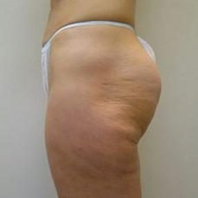 5-velashape-before-and-after-cellulite-EverYoung-Medical-Aesthetics-Port-Coquitlam-BC