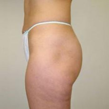 6-velashape-before-and-after-cellulite-EverYoung-Port-Coquitlam-Medspa