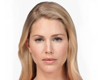 bellafill-after