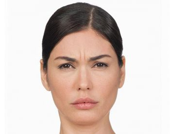 bellafill-before